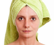 Woman with spotty skin healed. Woman with spotty skin with deep pores and blackhead and healed soft skin - before and after Royalty Free Stock Photos