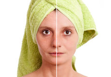 Woman with spotty skin healed Stock Photography