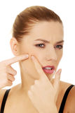 Woman squeezing a pimple. Stock Images