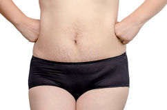 Woman with stretchmarks on her belly Royalty Free Stock Photo