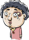 Woman with stye above her left eye. Illustration of woman with curly hair, looking sad because of a large painful stye above her left eye. There is swelling Royalty Free Stock Photo