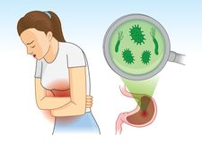 Woman suffering with abdominal pain symptom because bacterial in stomach. Concept Illustration about hygiene and health Vector Illustration