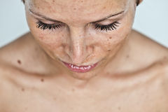 Woman with sunburn royalty free stock images