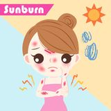 Woman with sunburn problem. Cute cartoon woman with sunburn problem on blue background Royalty Free Stock Images