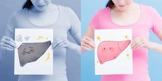 Woman take health liver billboard. Woman take liver billboard with health concept on the blue background stock image