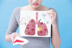 Woman take lung billboard. Woman take sick lung billboard on the blue background Stock Photos
