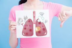 Woman take unhealth lung billboard. On the blue background Stock Photo
