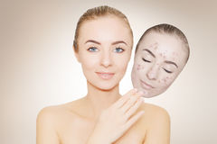Woman takes away mask with acne and pimples,beige background Stock Photo