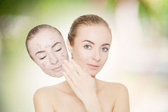 Woman takes away mask with acne and pimples,green outdoor backgr stock photo