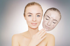 Woman takes away mask with acne and pimples,grey background Stock Image