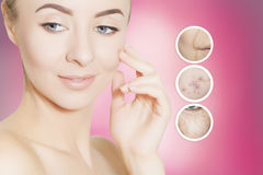 Woman takes away mask with acne and pimples Stock Photos