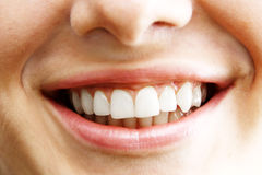 Woman teeth 1 Stock Photo