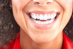 Woman teeth Stock Image