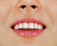 Woman teeth Royalty Free Stock Image
