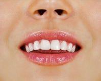 Woman teeth royalty free stock image