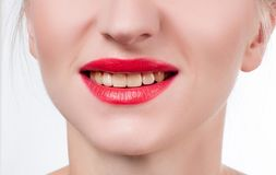 Woman teeth before bleaching.Teeth whitening at the dentist. Yellow teeth, plaque cleaning on teeth Royalty Free Stock Photo