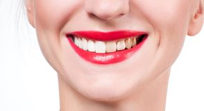 Female smile before and after bleaching. Whitening teeth. Woman teeth before and after bleaching. Whitening teeth Stock Image