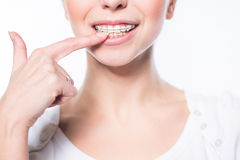 Woman with teeth braces. Beautiful young woman with teeth braces isolated on white Stock Photo