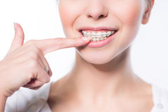 Woman with teeth braces Stock Images