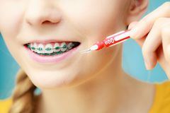 Woman with teeth braces using interdental brush. Dentist and orthodontist concept. Young woman with blue braces cleaning and brushing teeth using little Royalty Free Stock Photography
