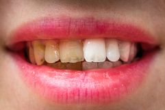 Woman teeth before and after dental treatment Royalty Free Stock Photos