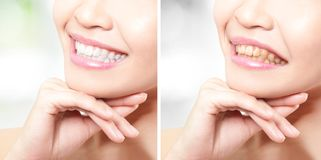 Woman teeth before and after whitening Royalty Free Stock Photo