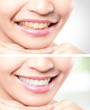 Woman teeth before and after whitening Stock Photography