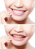 Woman teeth before and after whitening Stock Image