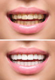 Woman teeth before and after whitening Royalty Free Stock Photography