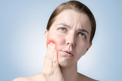 Woman with toothache. Young woman suffering from toothache Stock Image