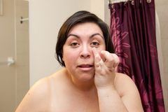 Sleep deprived out of shower. Woman touches and looks at the bags under her eyes with bare shoulders in the bathroom stock photo