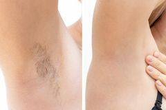 Free Woman Underarms, Armpit Before And After Depilation, Laser Waxing And Sugaring Stock Image - 164758311