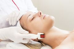 Woman undergoes the procedure of medical micro needle therapy with a modern medical instrument derma roller. Stock Photo