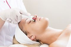 Medical micro needle therapy with a modern medical instrument derma roller. Royalty Free Stock Photo