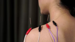 Woman undergoing acupuncture treatment with electrical stimulator on shoulder. Young woman undergoing acupuncture treatment with electrical stimulator on stock footage