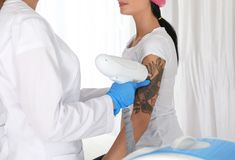 Woman undergoing laser tattoo removal procedure in salon stock image