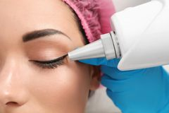 Woman undergoing laser tattoo removal procedure in salon. Closeup royalty free stock photos