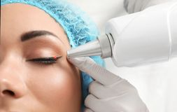 Woman undergoing laser tattoo removal procedure in salon. Closeup stock photo