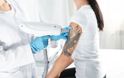Woman undergoing laser tattoo removal procedure. In salon stock photography
