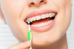 Woman using brush for orthodontic braces. Close-up picture of woman using interdental brush for orthodontic braces Stock Photography