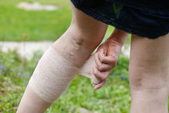 Woman with varicose veins applying compression bandage. Woman with painful varicose and spider veins on her legs, applying compression bandage, self-helping stock images