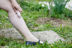 Woman with varicose veins applying compression bandage Stock Image
