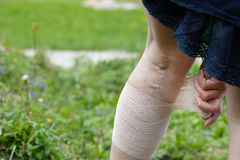 Woman with varicose veins applying compression bandage Royalty Free Stock Photos