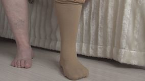 Woman wearing medical stockings against varicose veins on the legs, treatment. Woman wearing medical stockings against varicose veins on the legs, phlebeurysm stock video footage