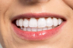 Woman wearing orthodontic silicone trainer. Close up Stock Photos