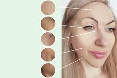Woman wrinkles before after collage lifting cosmetology therapy regeneration procedures contrast. Woman wrinkles before and after collage procedures contrast stock photography