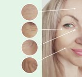Woman wrinkles before after collage biorevitalization lifting cosmetology therapy procedures contrast. Woman wrinkles before and after collage procedures stock photography