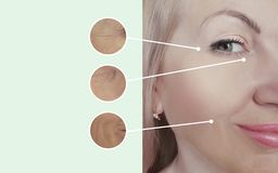 Woman wrinkles before after collage regeneration procedures contrast. Woman wrinkles before and after collage procedures contrast regeneration stock images