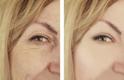 Woman wrinkles before and after correction cosmetology therapy, ageing procedure biorevitalization treatments. Woman wrinkles before and after treatments therapy royalty free stock images