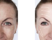 Woman wrinkles correction lifting contrast results before and after treatments arrow. Woman wrinkles correction before and after treatments arrow procedure stock image